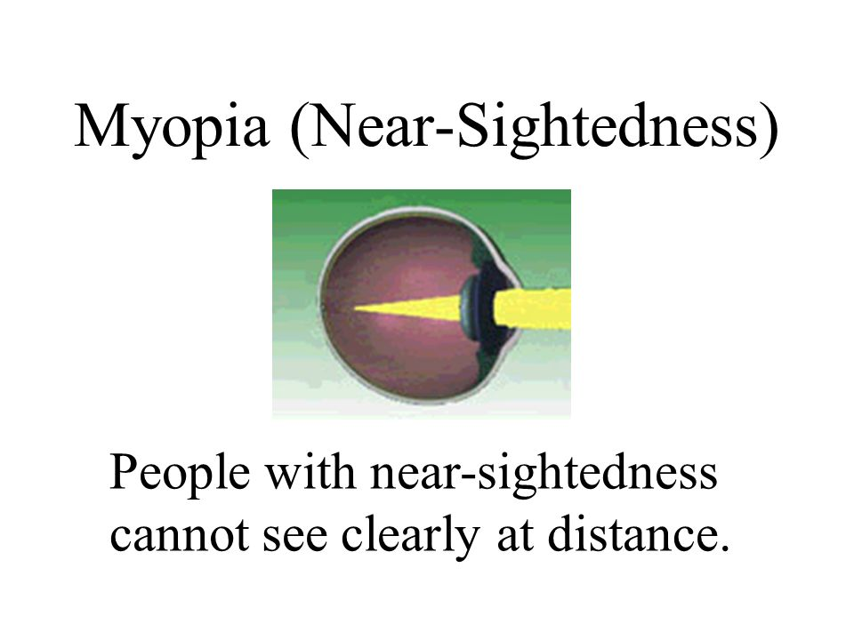Myopia (Near-Sightedness)