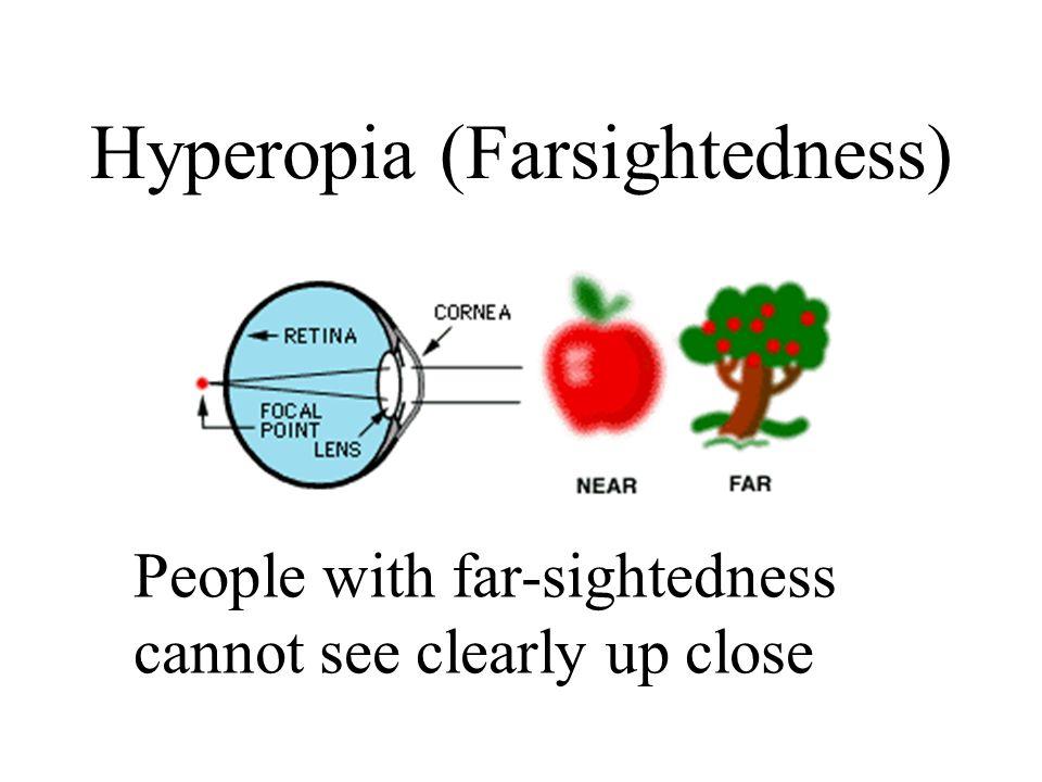 Hyperopia (Farsightedness)