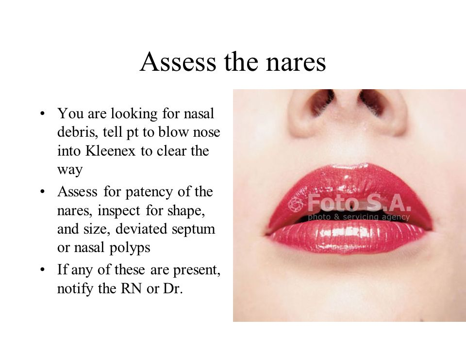 Assess the nares You are looking for nasal debris, tell pt to blow nose into Kleenex to clear the way.