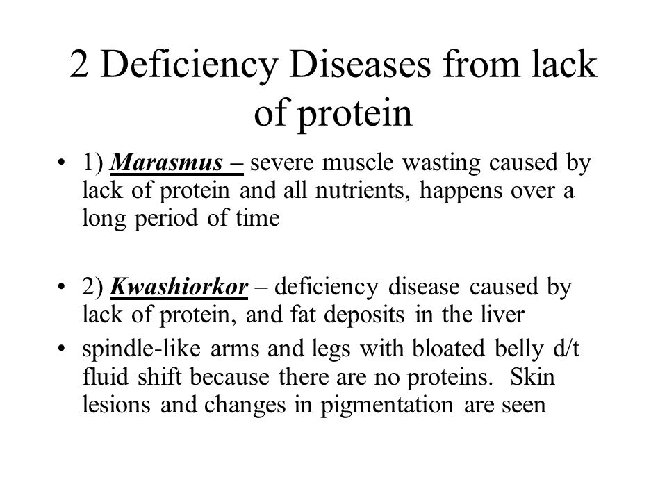 2 Deficiency Diseases from lack of protein