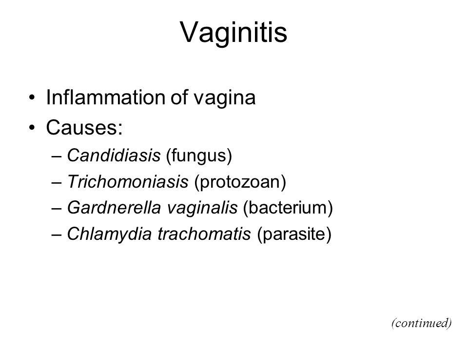 Vaginitis Inflammation of vagina Causes: Candidiasis (fungus)