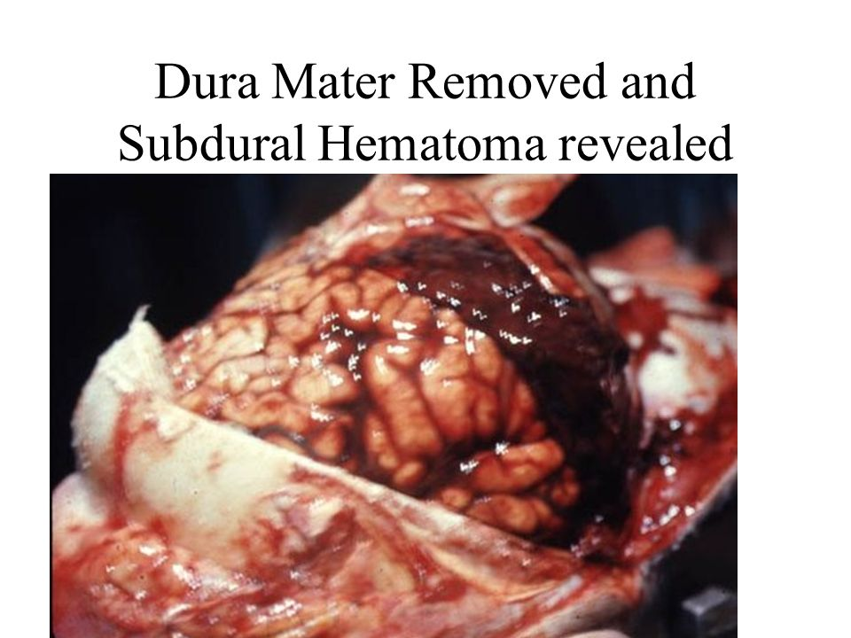 Dura Mater Removed and Subdural Hematoma revealed