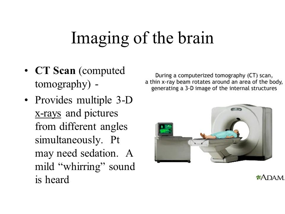 Imaging of the brain CT Scan (computed tomography) -