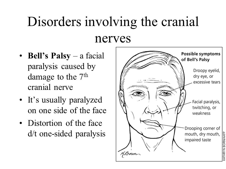 Disorders involving the cranial nerves