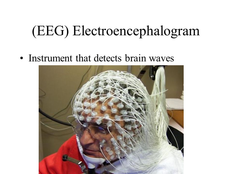 (EEG) Electroencephalogram