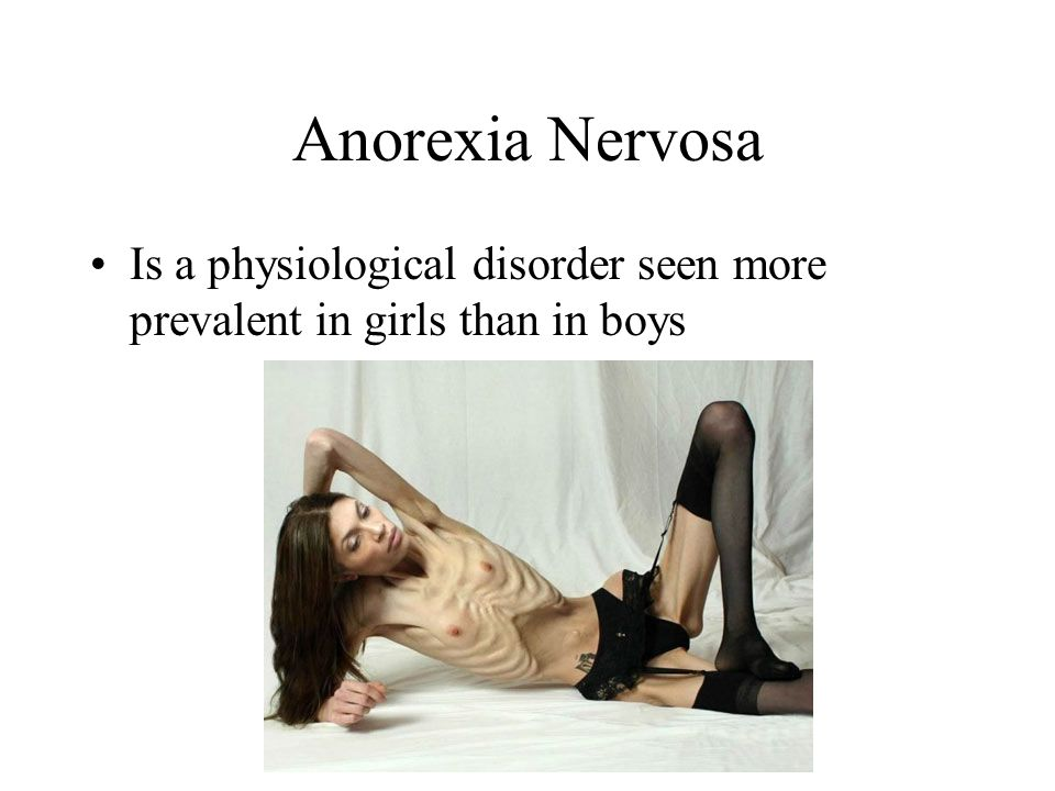 Anorexia Nervosa Is a physiological disorder seen more prevalent in girls than in boys