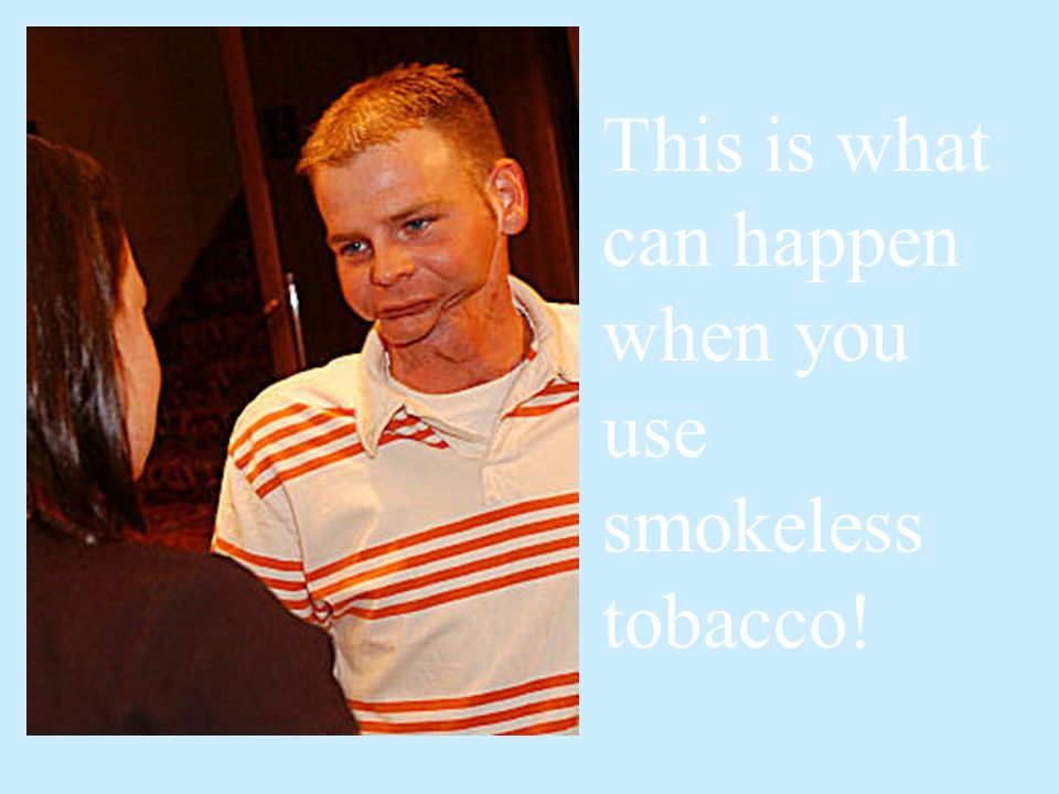 This is what can happen when you use smokeless tobacco!