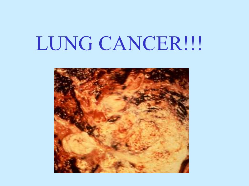 LUNG CANCER!!!