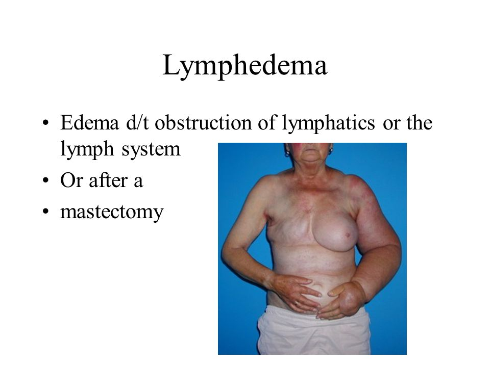 Lymphedema Edema d/t obstruction of lymphatics or the lymph system