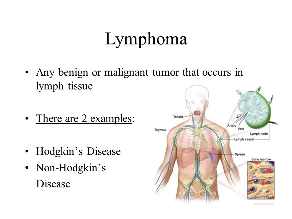 Lymphoma Any benign or malignant tumor that occurs in lymph tissue
