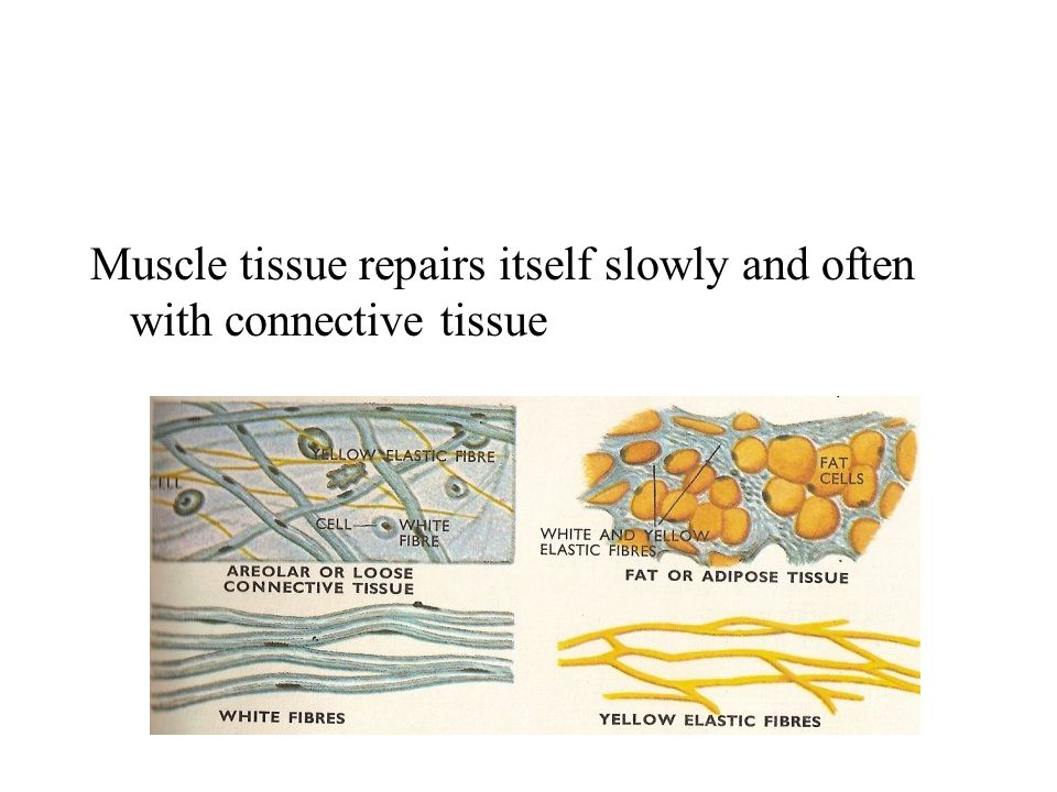 Muscle tissue repairs itself slowly and often with connective tissue