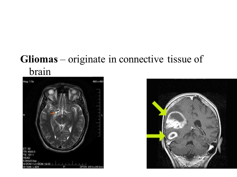Gliomas – originate in connective tissue of brain