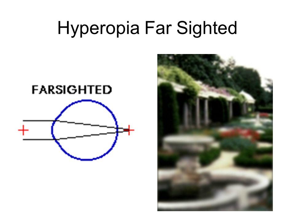 Hyperopia Far Sighted