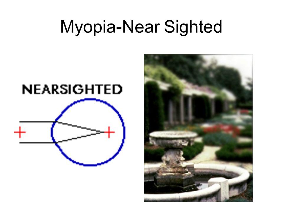 Myopia-Near Sighted