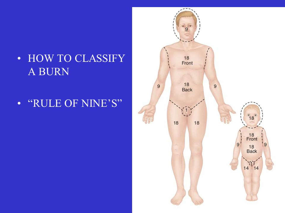 HOW TO CLASSIFY A BURN RULE OF NINE'S