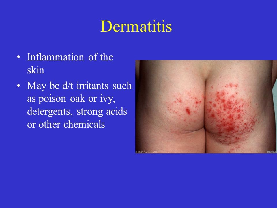 Dermatitis Inflammation of the skin