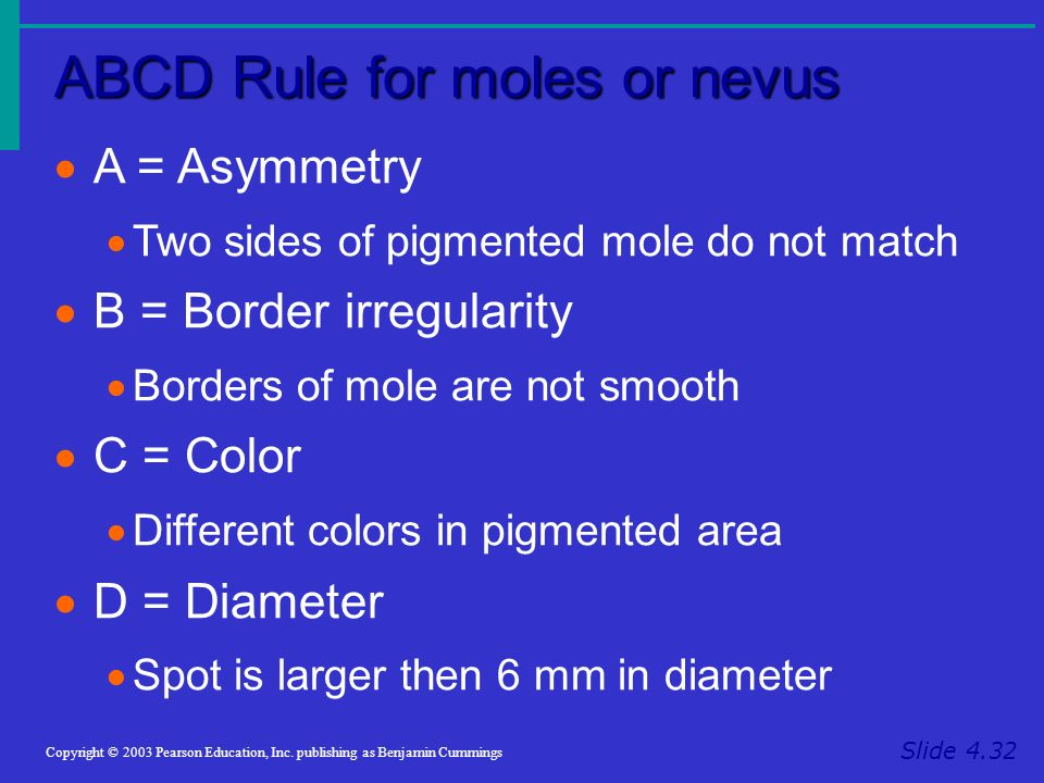 ABCD Rule for moles or nevus