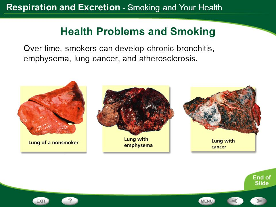 Health Problems and Smoking