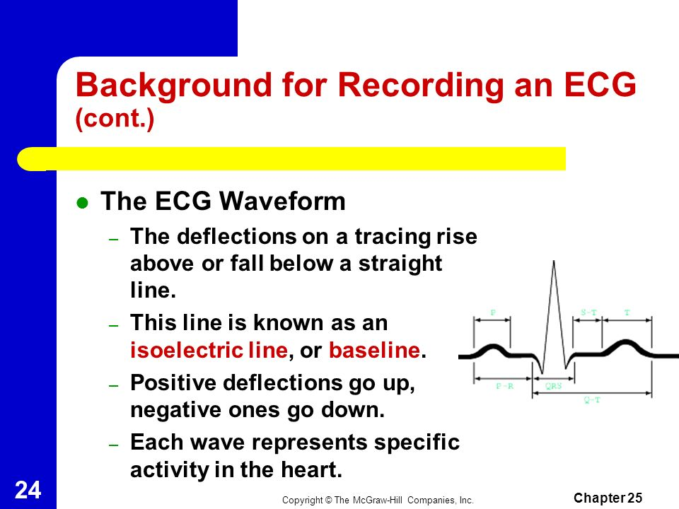 Background for Recording an ECG (cont.)