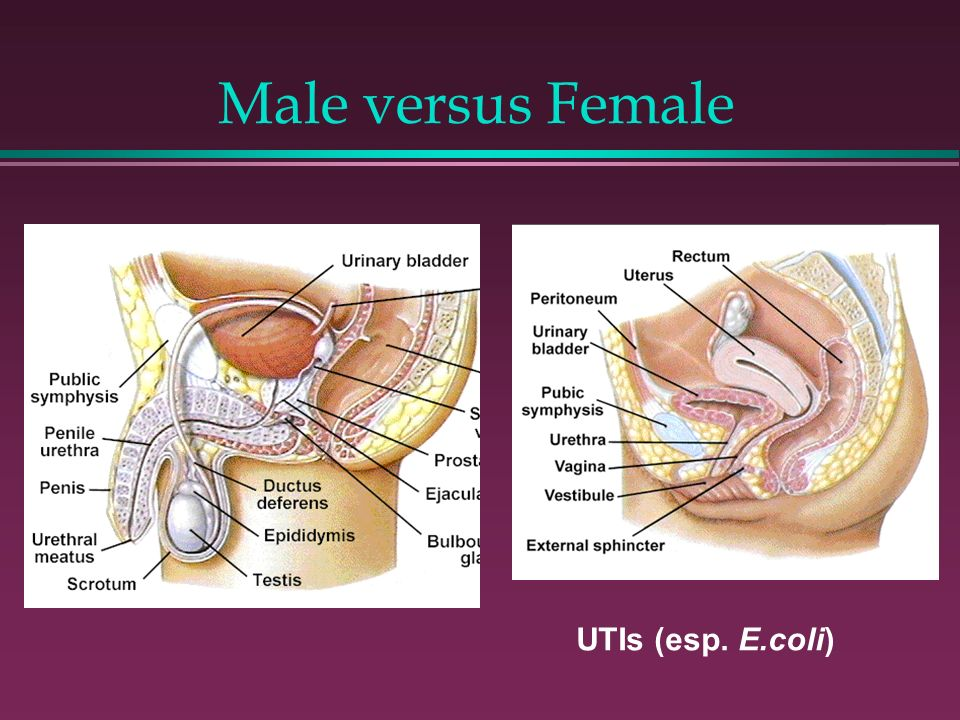 Male versus Female UTIs (esp. E.coli)