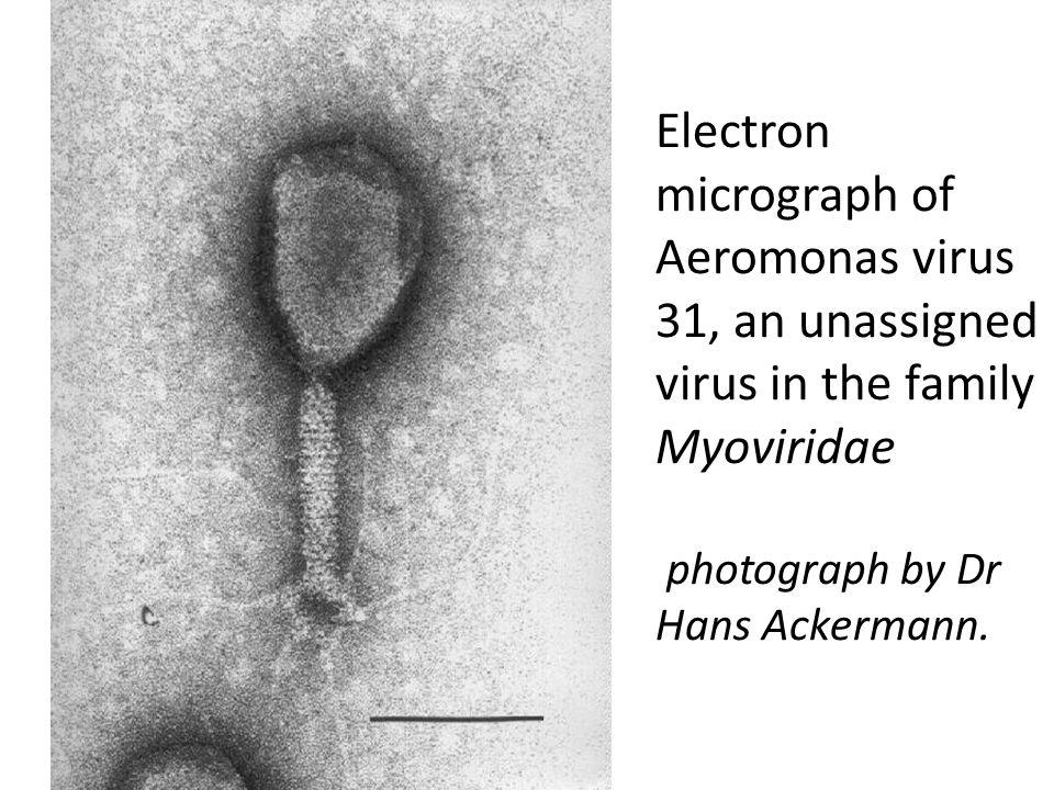 Electron micrograph of Aeromonas virus 31, an unassigned virus in the family Myoviridae