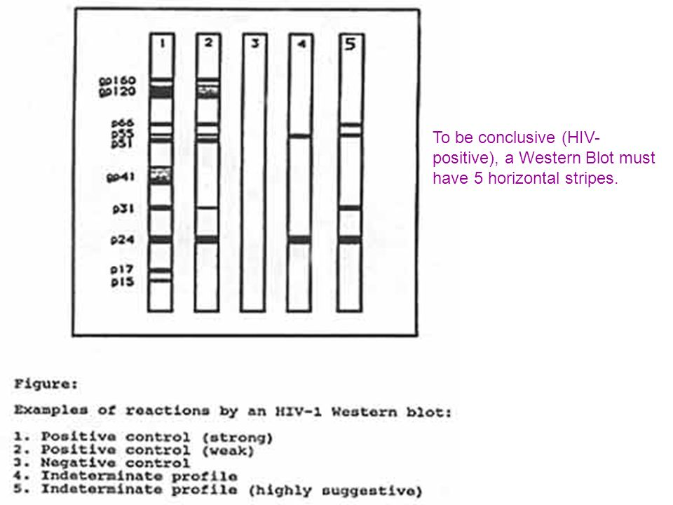 To be conclusive (HIV-positive), a Western Blot must have 5 horizontal stripes.