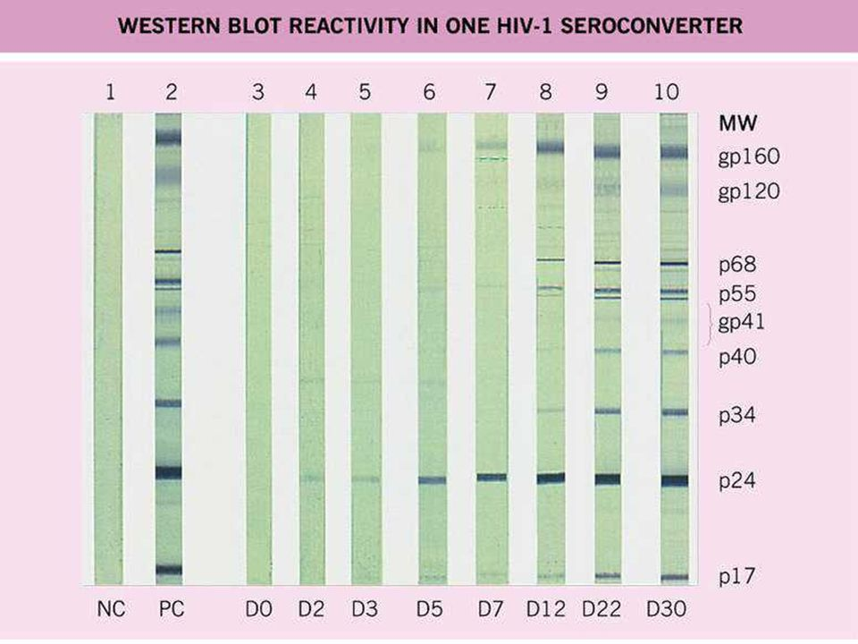 Below is a photograph of a Western Blot tests