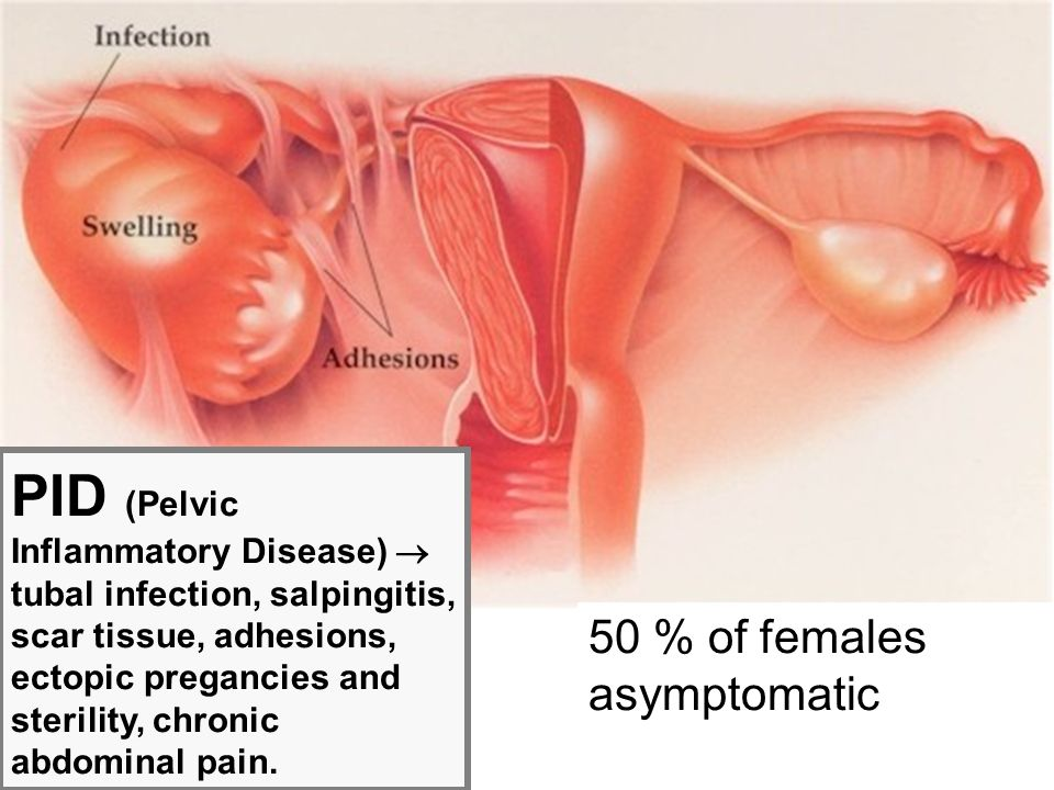 PID (Pelvic Inflammatory Disease)  tubal infection, salpingitis, scar tissue, adhesions, ectopic pregancies and sterility, chronic abdominal pain.