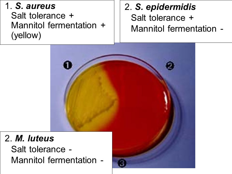 1. S. aureus Salt tolerance + Mannitol fermentation + (yellow)
