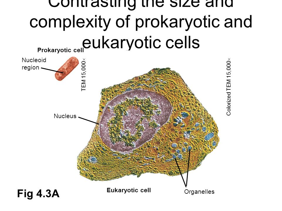 Contrasting the size and complexity of prokaryotic and eukaryotic cells