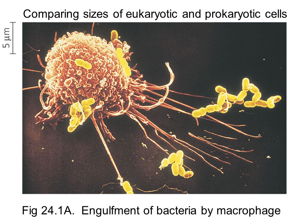 Comparing sizes of eukaryotic and prokaryotic cells