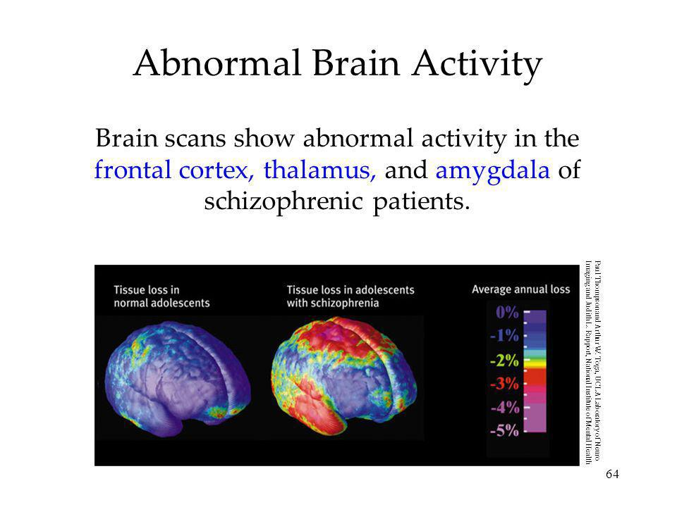 Abnormal Brain Activity