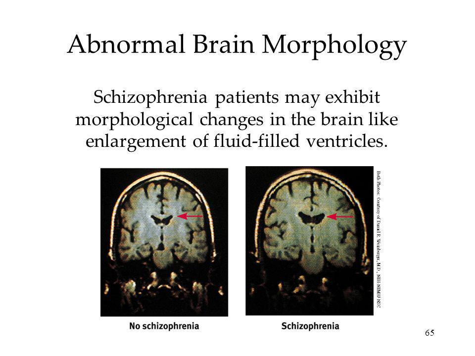 Abnormal Brain Morphology