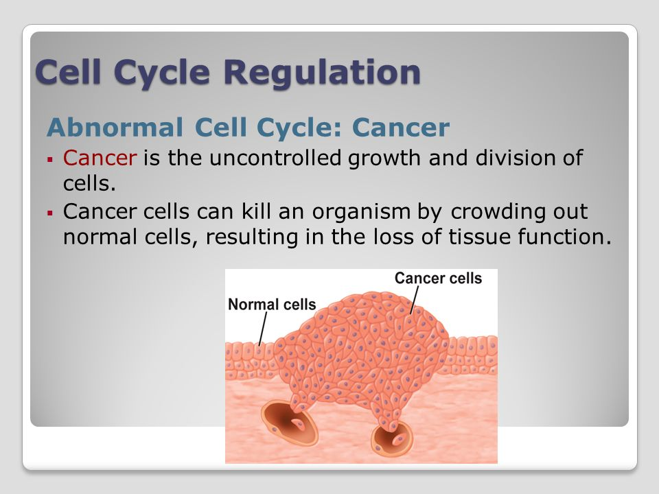 Cell Cycle Regulation Abnormal Cell Cycle: Cancer