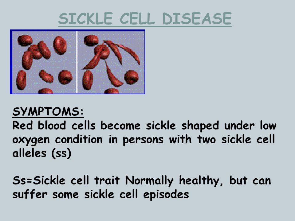 SICKLE CELL DISEASE SYMPTOMS: