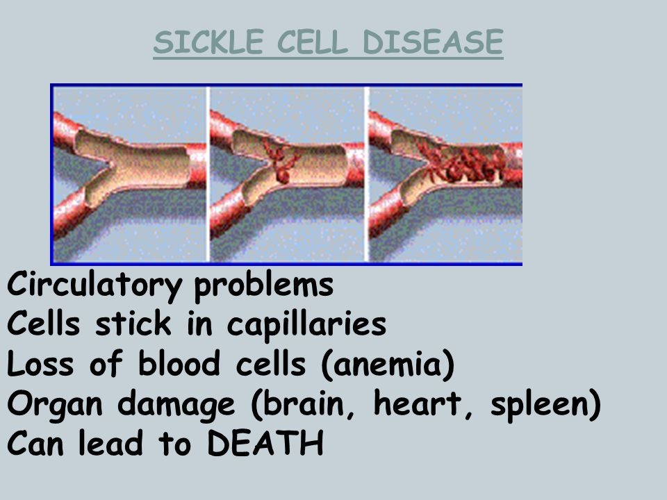 Cells stick in capillaries Loss of blood cells (anemia)