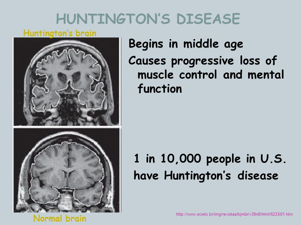 HUNTINGTON'S DISEASE Begins in middle age