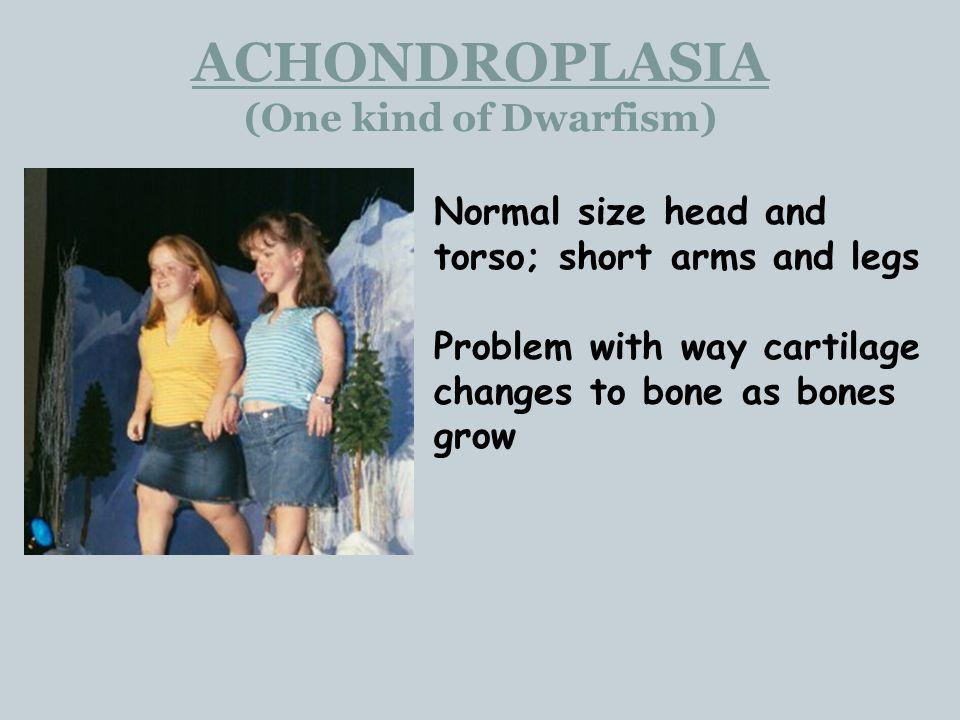 ACHONDROPLASIA (One kind of Dwarfism)