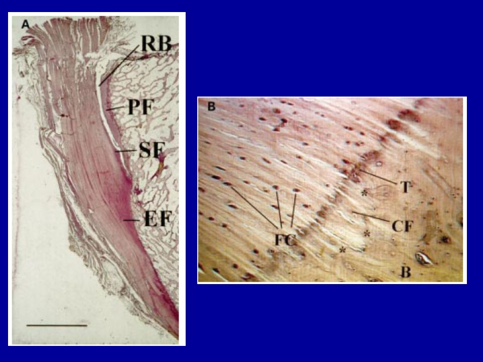 patellar tendon enthesis Fibrocartilage in extensor tendon and in ligament of  enthesis as being either fibrous or fibrocartilagenous  quadriceps tendon than patellar ligament as more.