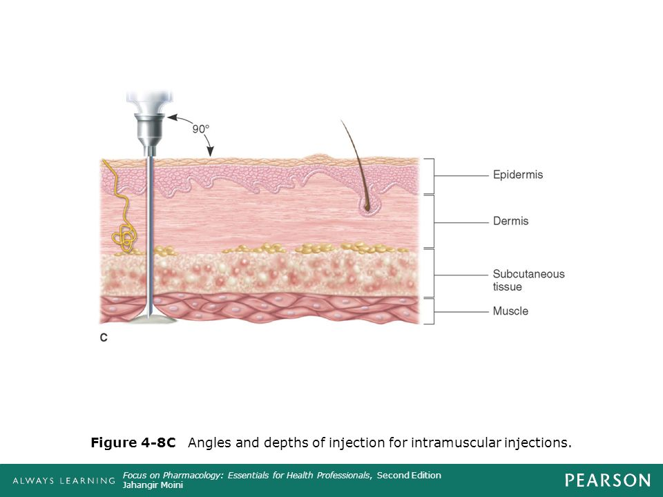 Intravenous injection angle