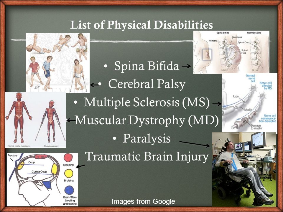 an introduction to the spina bifida a latin term meaning split spine Living with spina bifida spina bifida literally means 'split spine' or 'open spine' and is the result of defect in the spinal column that develops before a baby is born the damage to the spinal cord may not only impair mobility, but can also affect bladder and bowel function.