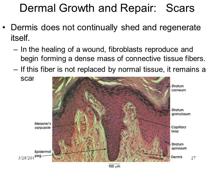 Dermal Growth and Repair: Scars