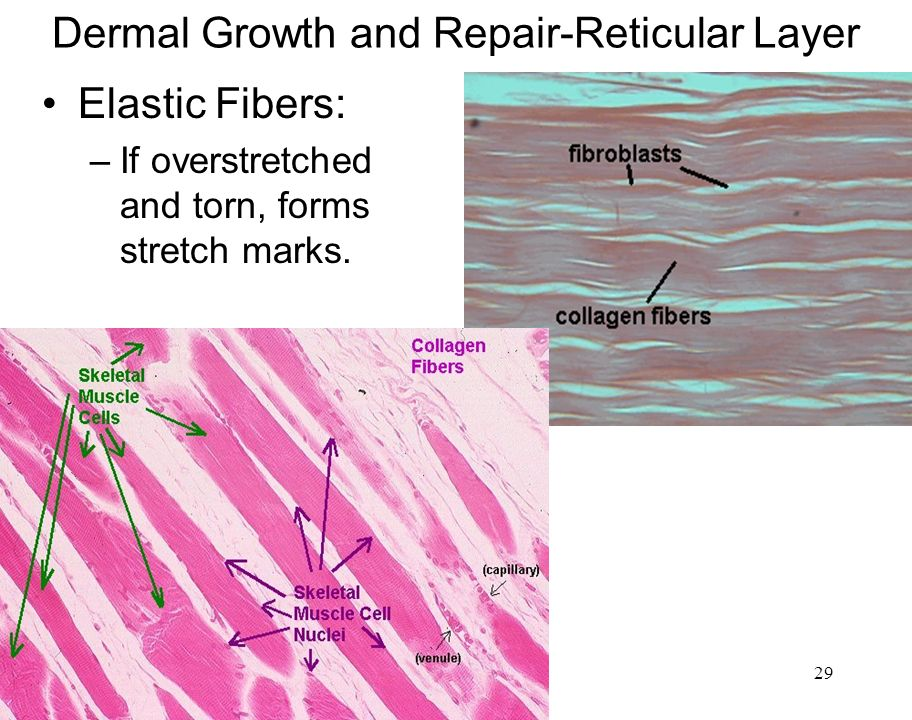 Dermal Growth and Repair-Reticular Layer