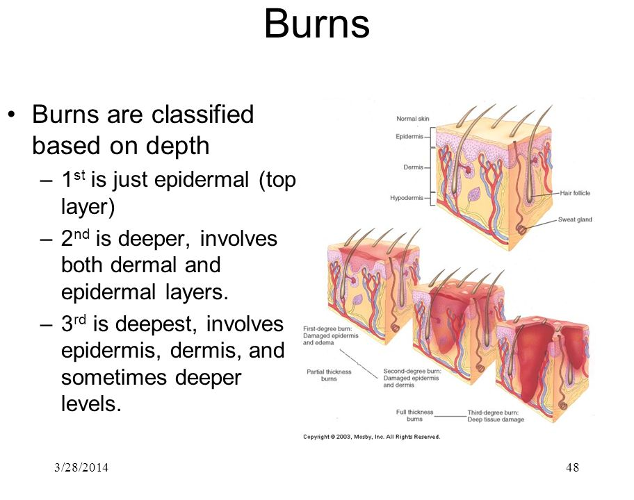 Burns Burns are classified based on depth