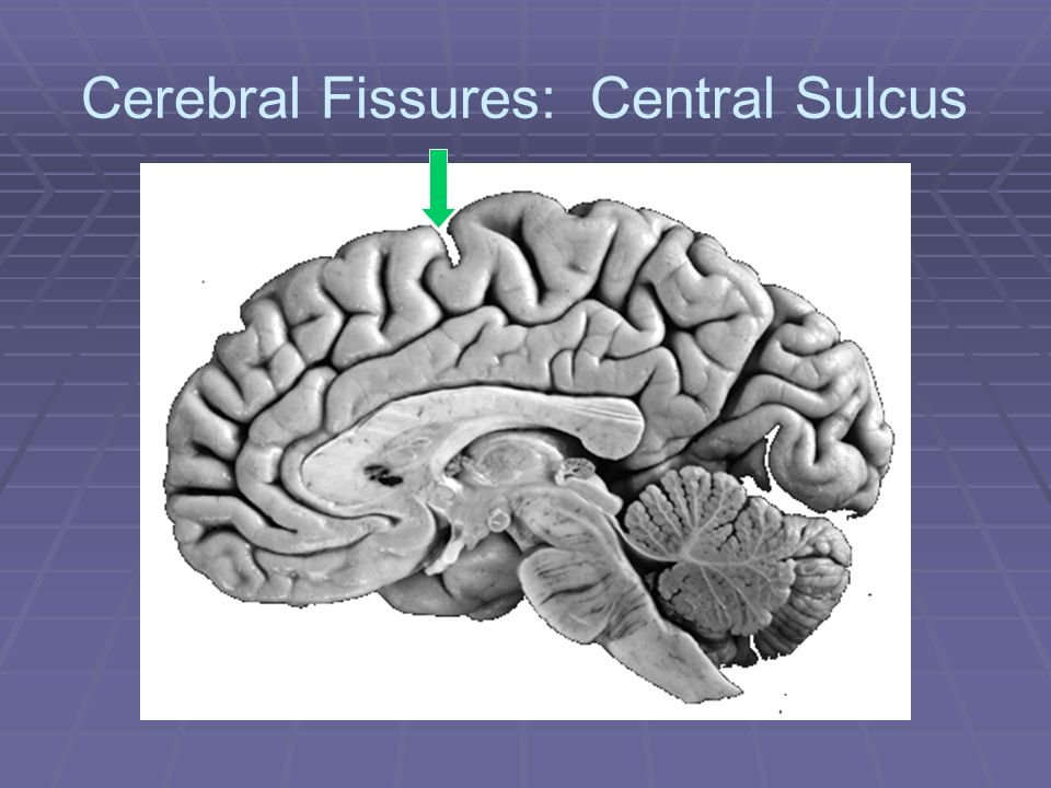 Cerebral Fissures: Central Sulcus