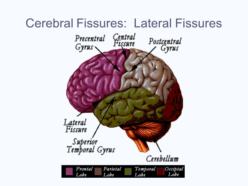 Cerebral Fissures: Lateral Fissures