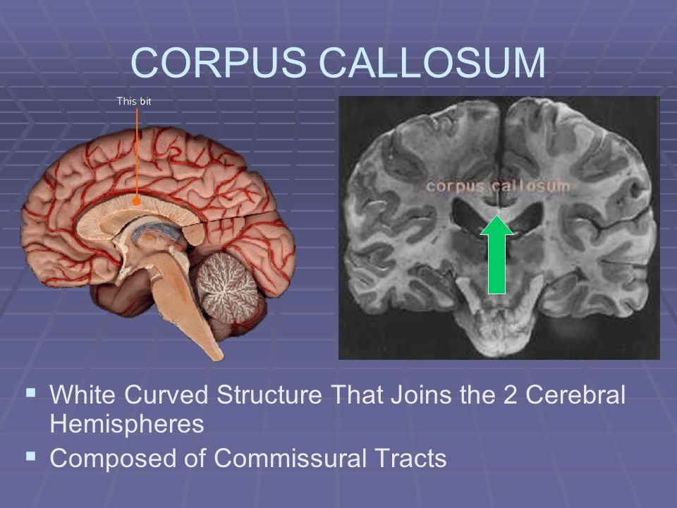 CORPUS CALLOSUM White Curved Structure That Joins the 2 Cerebral Hemispheres.