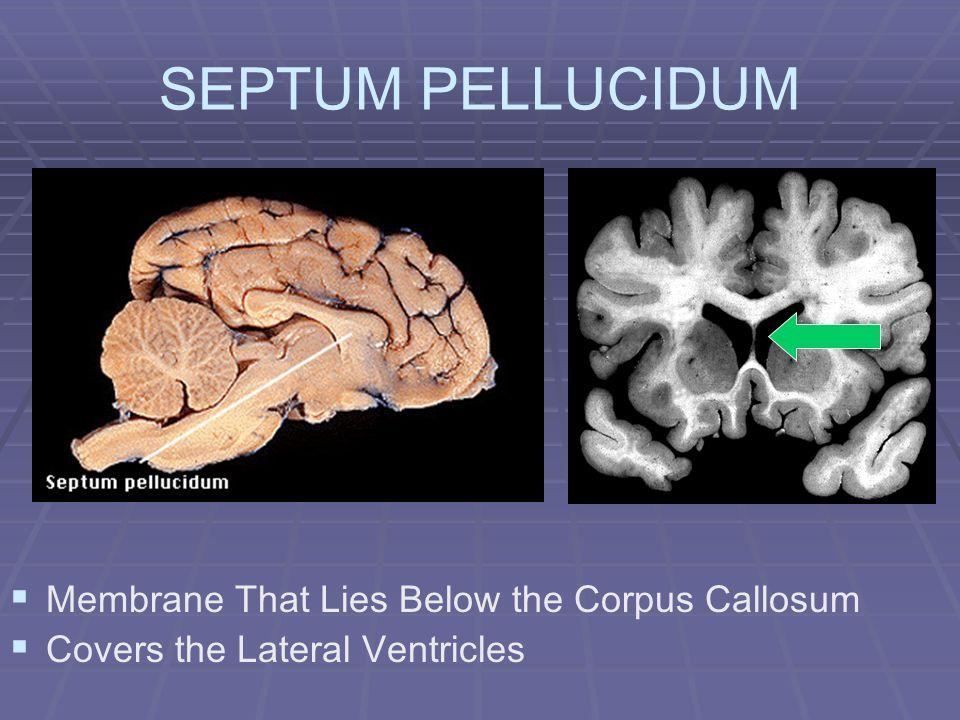 SEPTUM PELLUCIDUM Membrane That Lies Below the Corpus Callosum