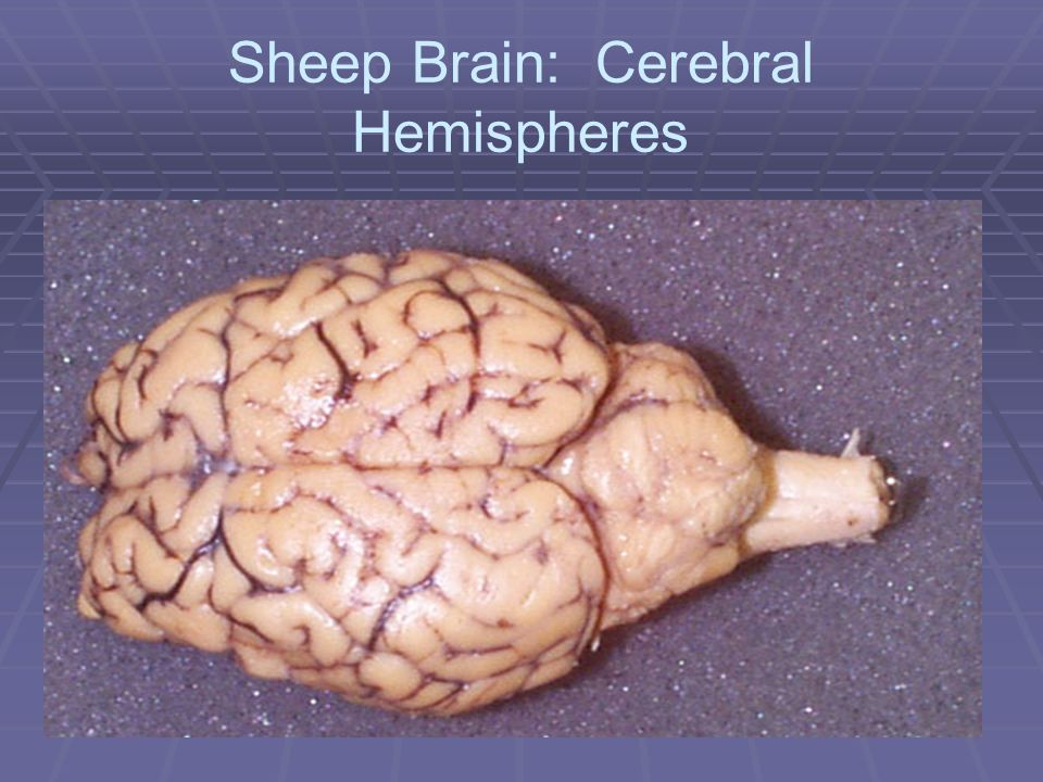 Sheep Brain: Cerebral Hemispheres