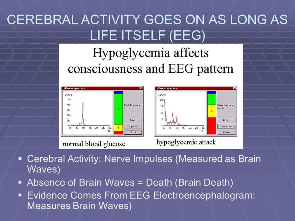 CEREBRAL ACTIVITY GOES ON AS LONG AS LIFE ITSELF (EEG)